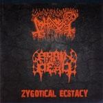 ABHORER / BRAIN DEAD | Zygotycal ectasy